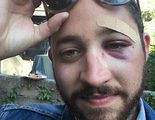 Un hombre es atacado en Nueva York por su parecido con Shia LaBeouf