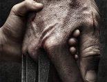 'Logan': Primer vistazo al personaje de Stephen Merchant, ¿un viejo conocido?
