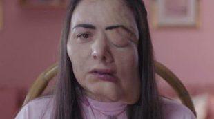 """Candela Peña: """"En Instagram nadie sale feo ni en un momento oscuro de su vida"""""""