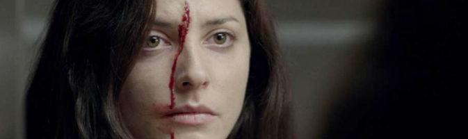 La actriz Bárbara Lennie con una brecha en la cara en un fotograma de 'Magical Girl'